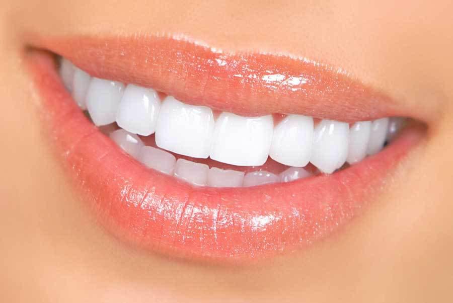уход за зубами, правила